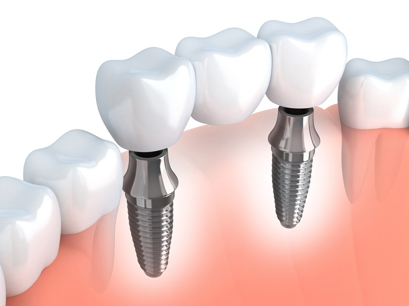 restorative dental services South San Francisco, CA